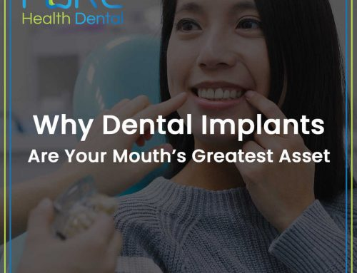 Why Dental Implants Are Your Mouth's Greatest Asset