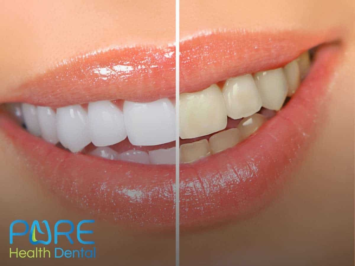 Smile Comparison Before and After An In Office Teeth Whitening Treatment In Ohio