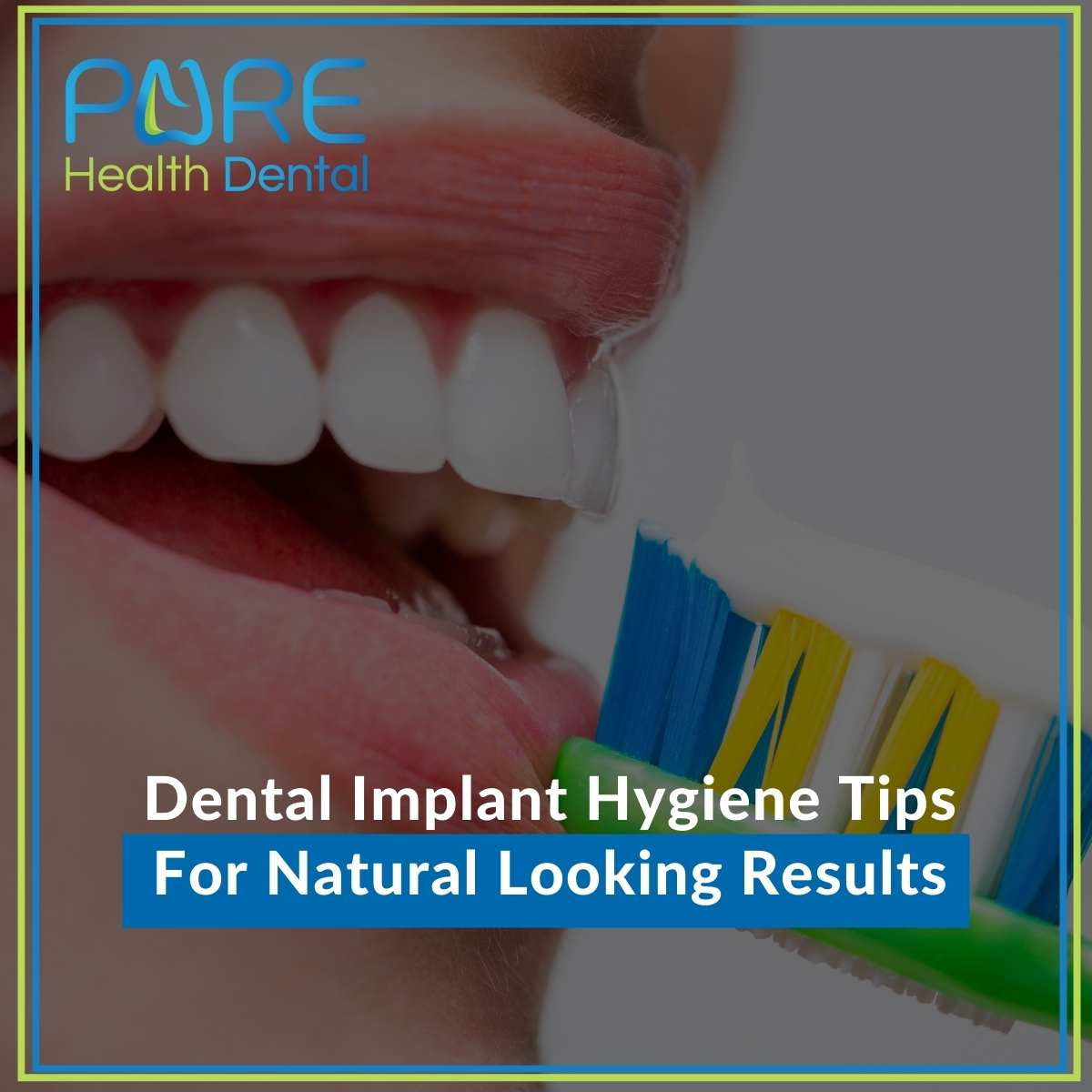 Dental Implant Hygiene Tips For Natural Looking Results
