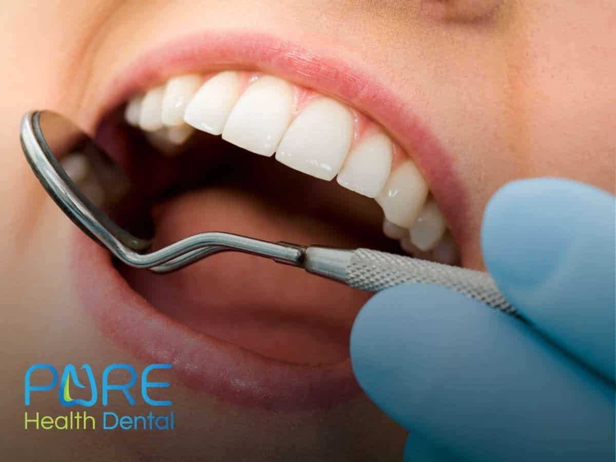 Treating Tooth Discoloration After Braces In Maple, OH.