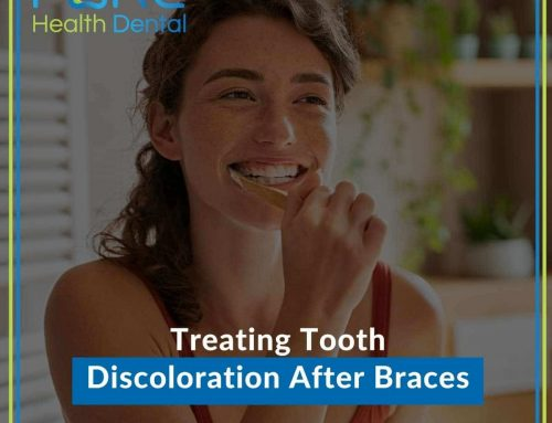Treating Tooth Discoloration After Braces